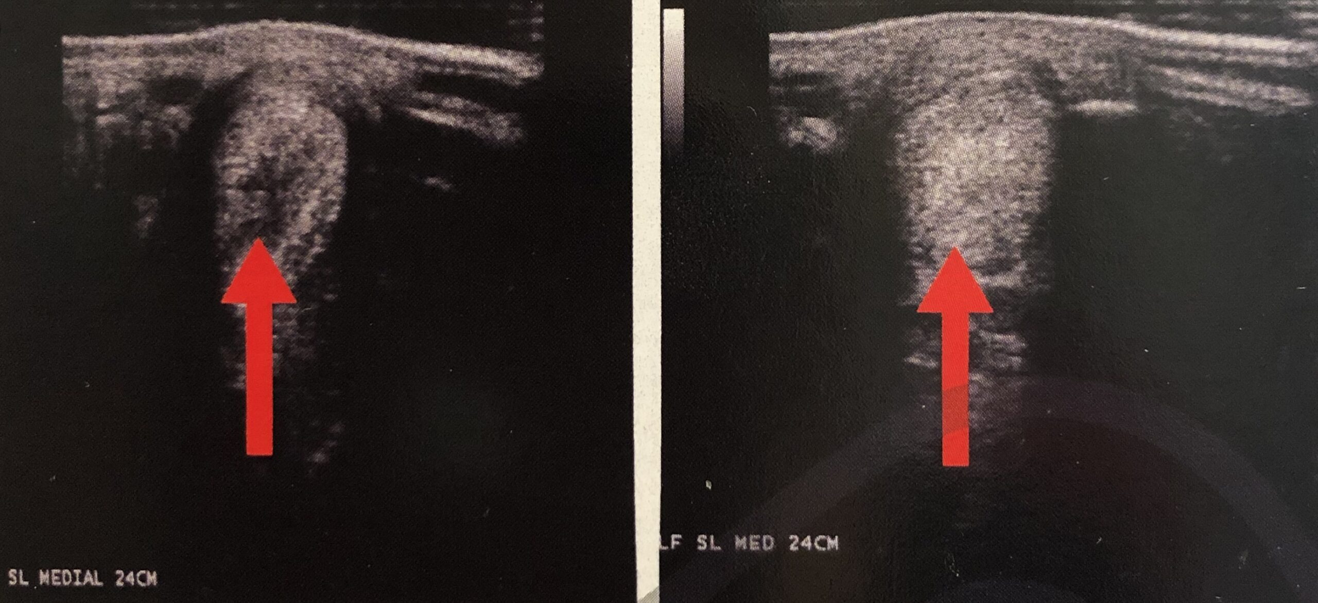 Left front suspensory ligament medial branch core lesion before and after regenerative laser therapy. Photo courtesy of SOUND.